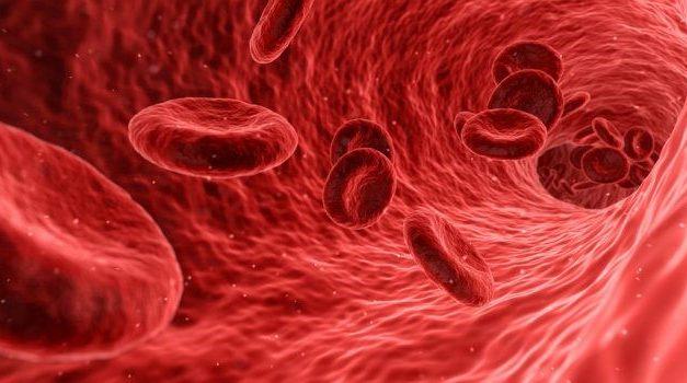 Hemofilia tip A