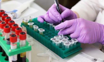 Proiectarea unui test de sânge care poate prezice durata de viață